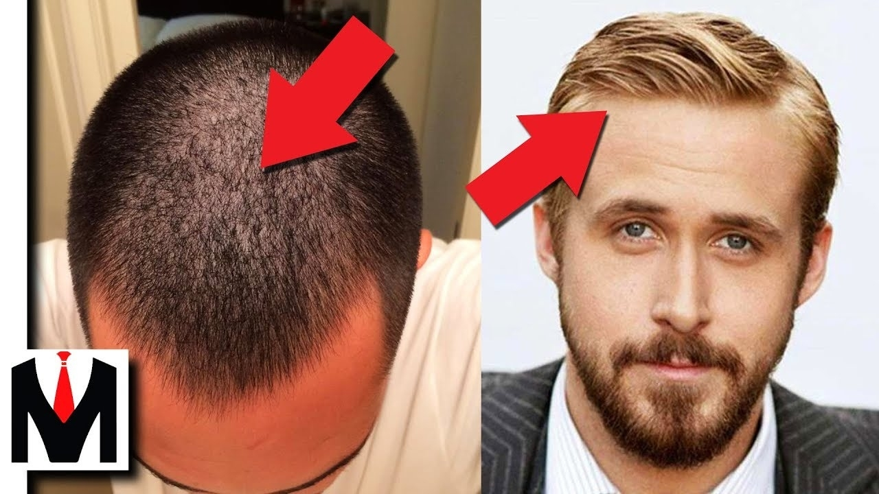 Fine Hair Vs Thin Hair   Same Or Different? Men's Hair Types Guide within Haircut For Thin Hair To Look Thicker Male