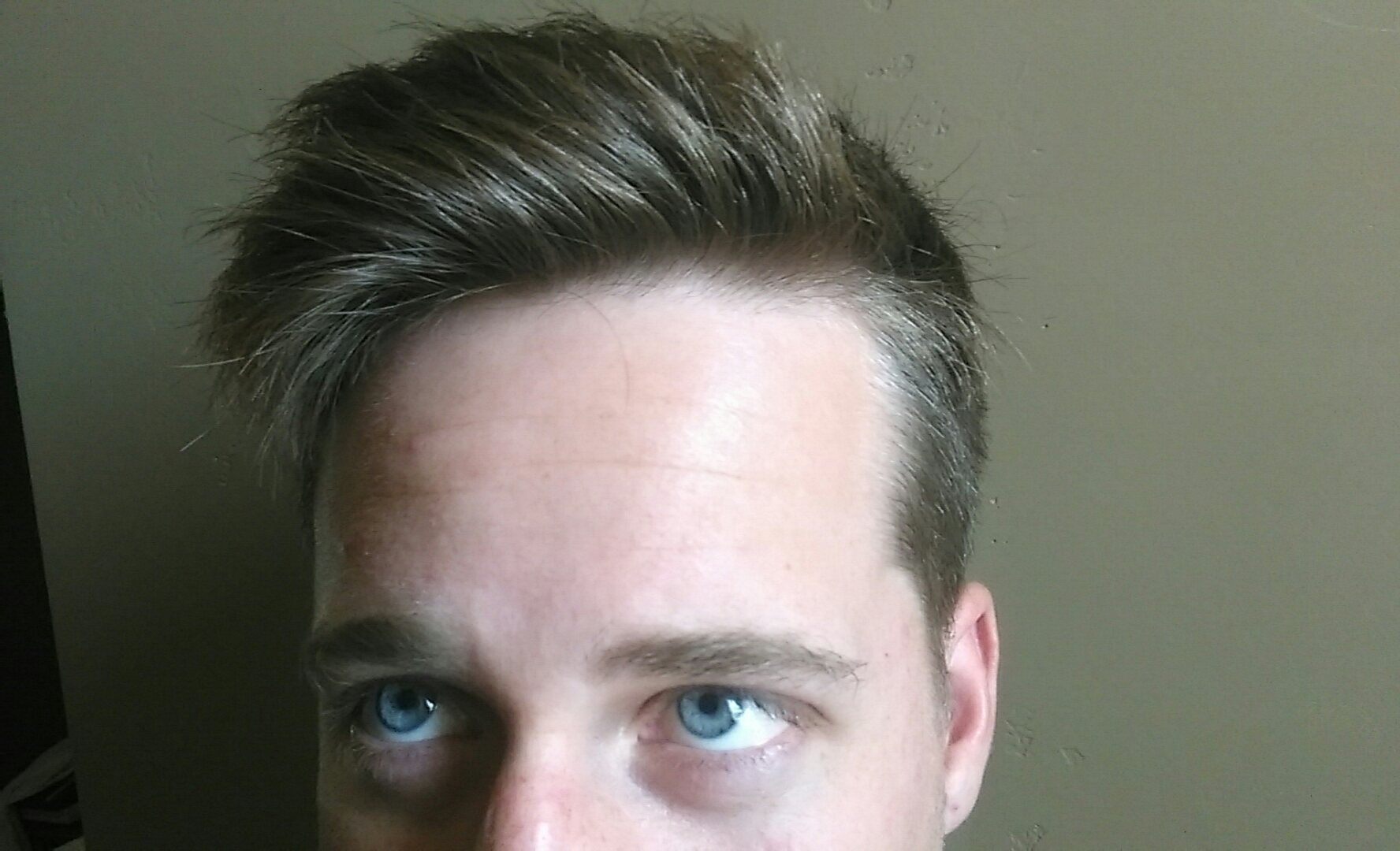 Help! Does This Look Like The Beginning Of Diffuse Thinning Mpb? Or for Haircut For Diffuse Thinning Hair