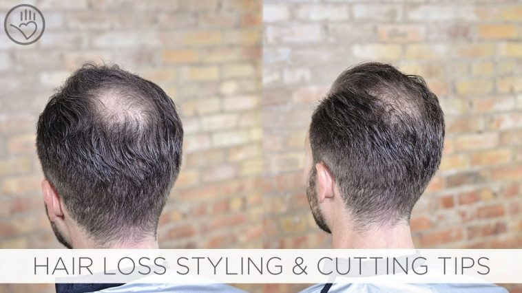 How To Cut & Style Balding Or Thinning Hair - Youtube with Haircuts For Thinning Hair At Crown