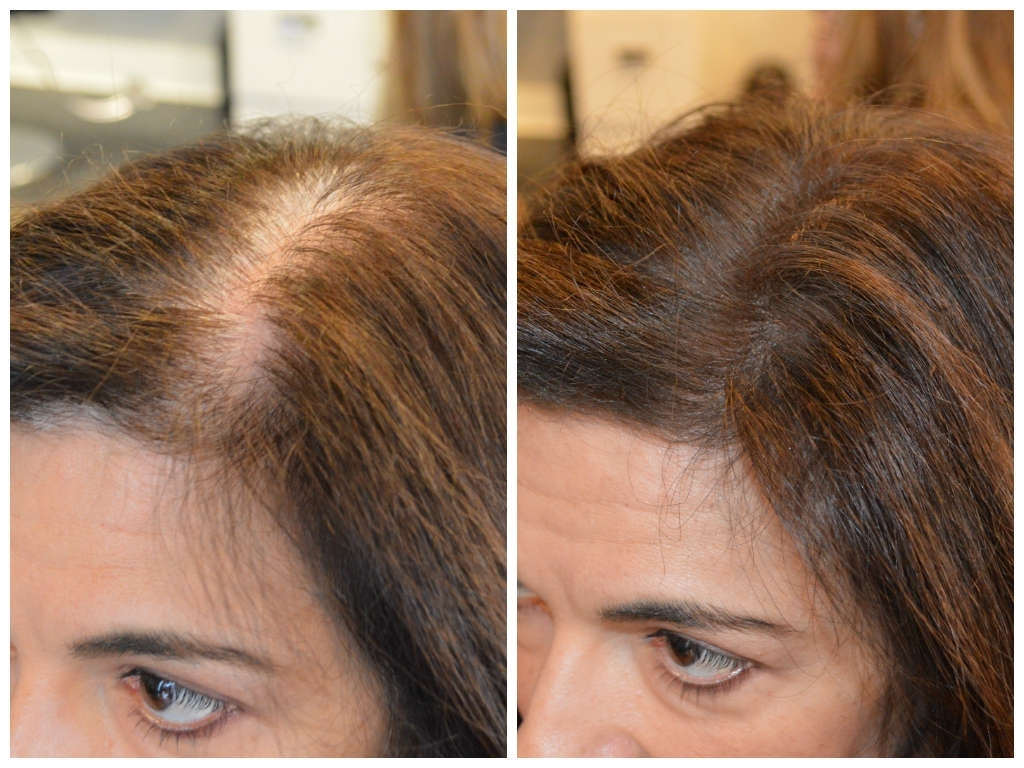 Scalp Color For Thinning Hair 2018 – Forensicanth - Forensicanth regarding Haircut For Thin Hair On Scalp