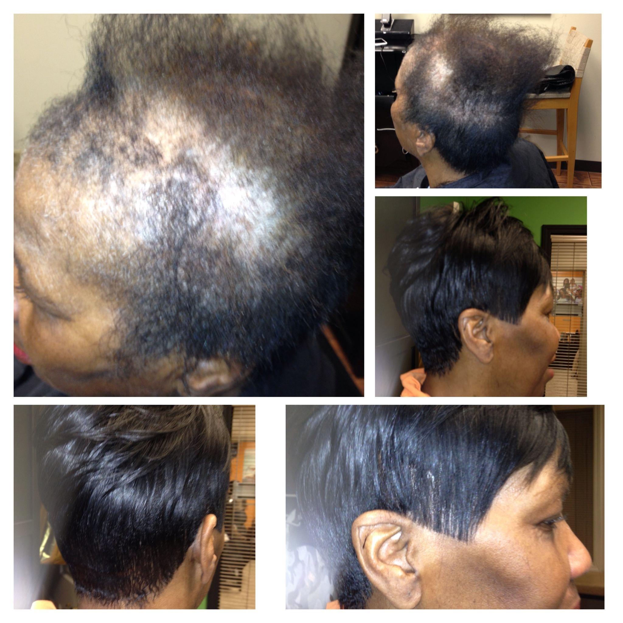 short medium length hairstyles to hide alopecia - wavy haircut