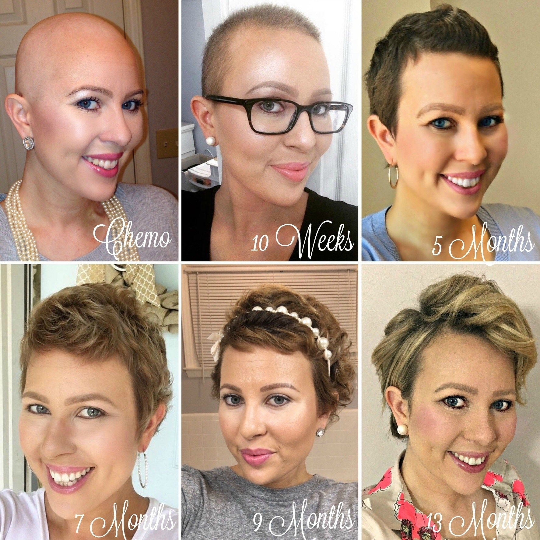 Chemo Regrowth: How To Style Your Short Hair | Hair Regrowth with regard to Short Hair For Cancer Patients