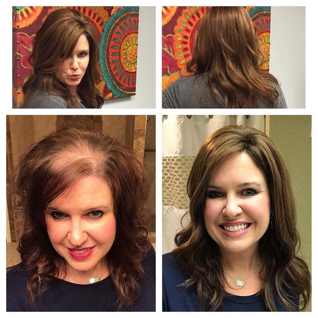 Haircuts For Women Who Are Balding   Wavy Haircut