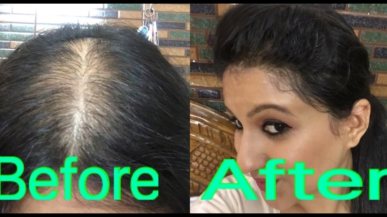 Hairstyle For Balding Crown For Women With Thin Curly Hair ...