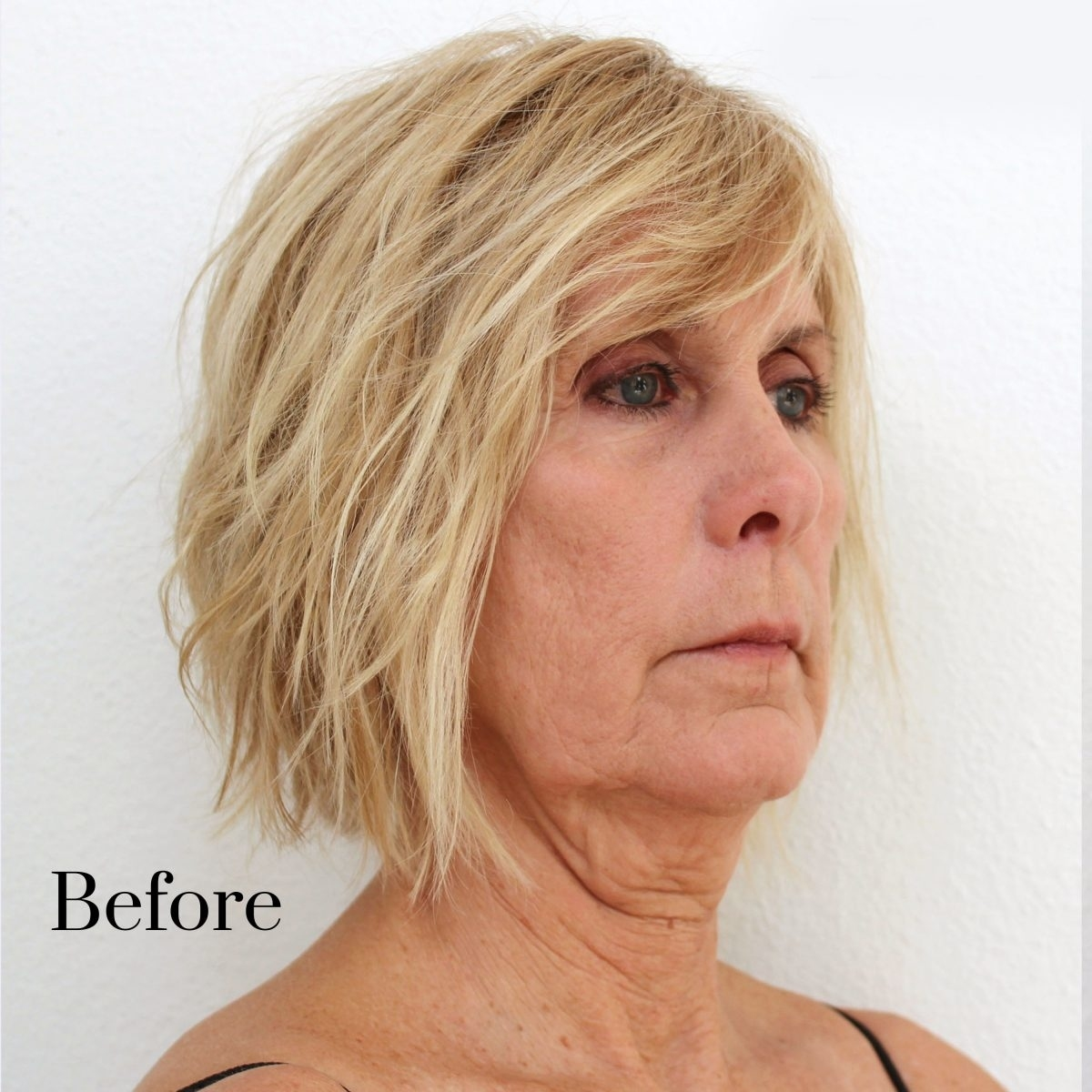 Instant Neck Lift with regard to Best Haircuts To Hide Sagging Jowls