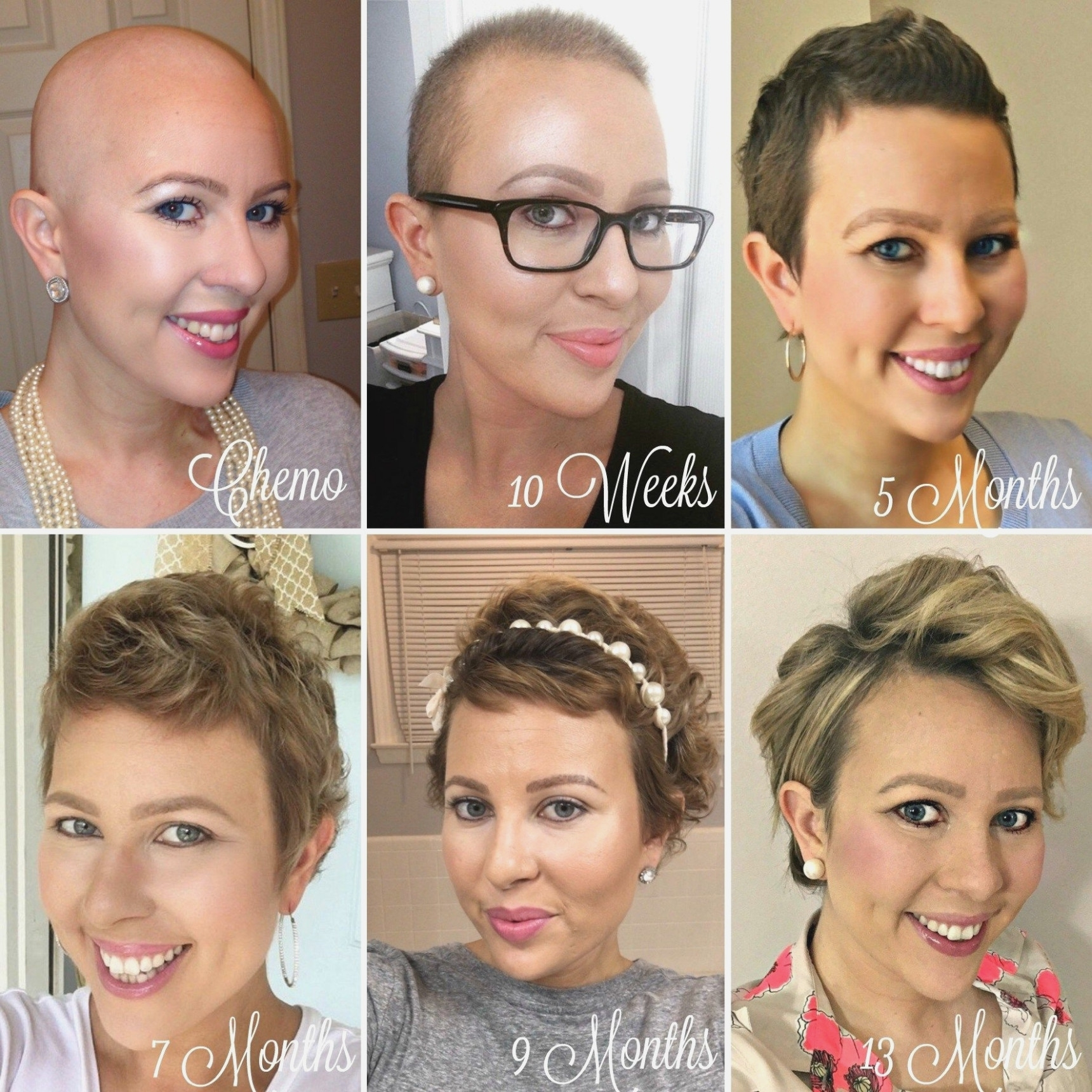 Reasons Why Short Haircuts For Cancer | The Hairstyles Ideas within Haircuts For Cancer Patients